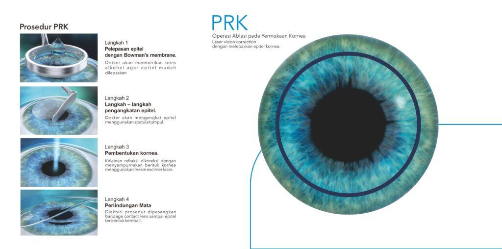 Prosedur PRK