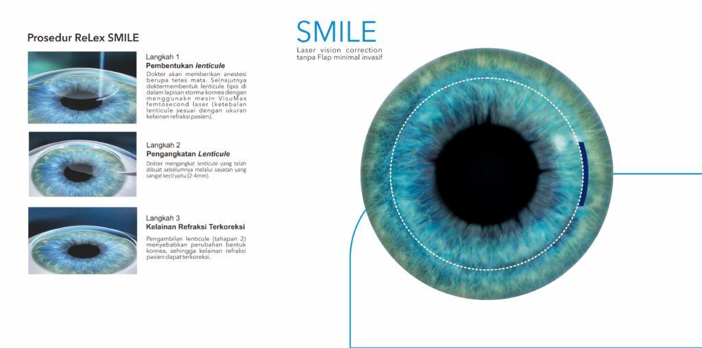 Prosedur Relex SMILE
